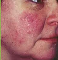 akne rozácea kozmetika